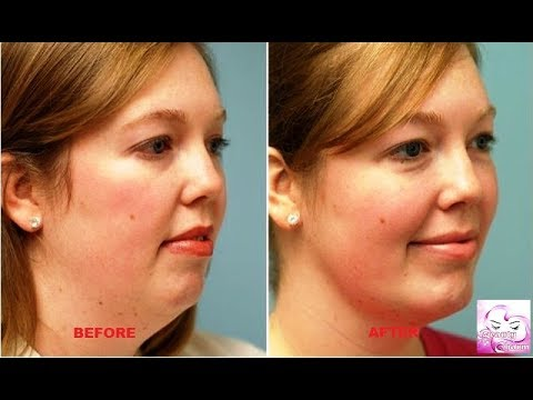 How to Get Rid of Neck Fat | Simple And Quick Get Rid of Neck Fat Fast from YouTube · Duration:  2 minutes 58 seconds