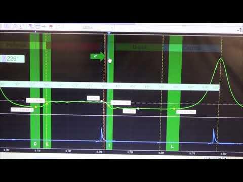 Диагностика ВАЗ 2114  Неисправный регулятор давления топлива