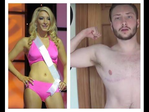 Female to Male Gender Affirming SurgeryKaynak: YouTube · Süre: 1 saat27 dakika31 saniye