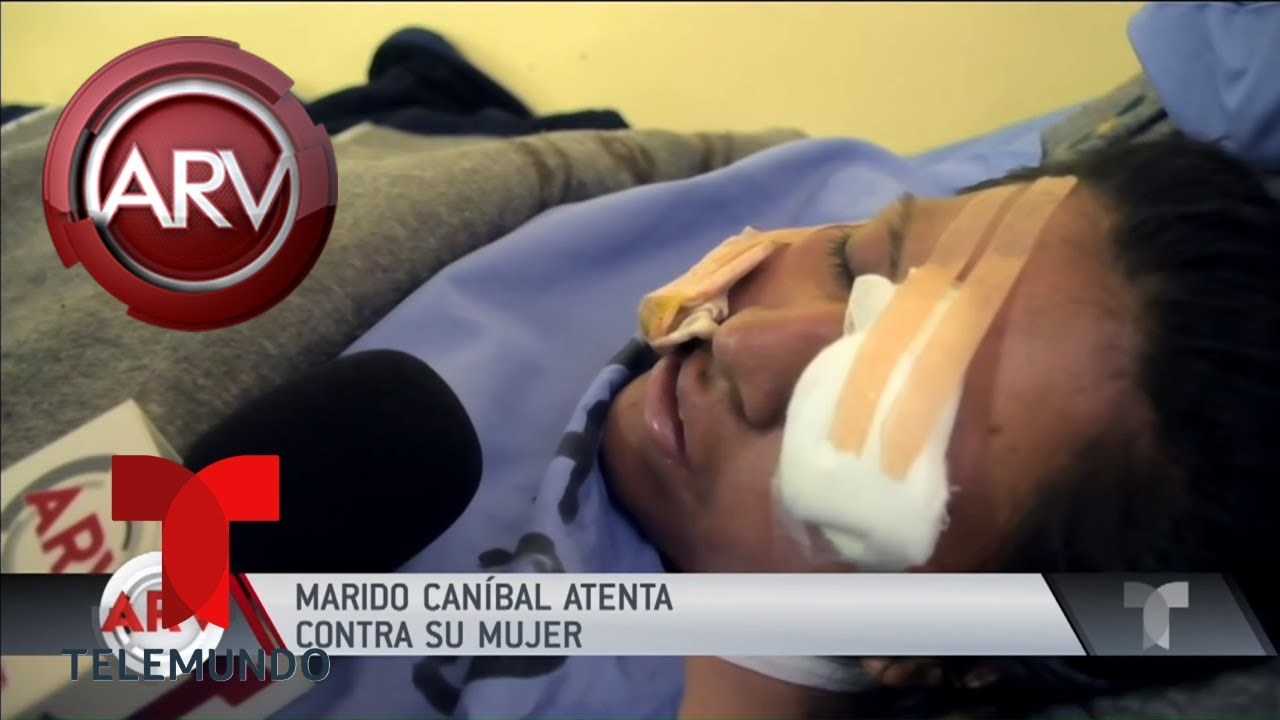 Esposo celoso sacó un ojo a su mujer y se lo comió  | Al Rojo Vivo | Telemundo