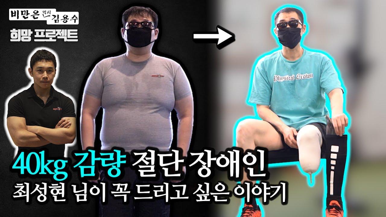 """[희망 프로젝트] """"한 번만 끝까지 시청해주세요"""" 다리 절단의 시련을 딛고 이뤄낸 40kg 다이어트! (스토리 및 심경 고백)"""