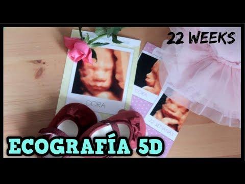 ECOGRAFÍA 5D de Cora 22 SEMANAS de EMBARAZO | Familia Tutti Vlog
