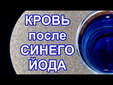 Кровь после синего йода