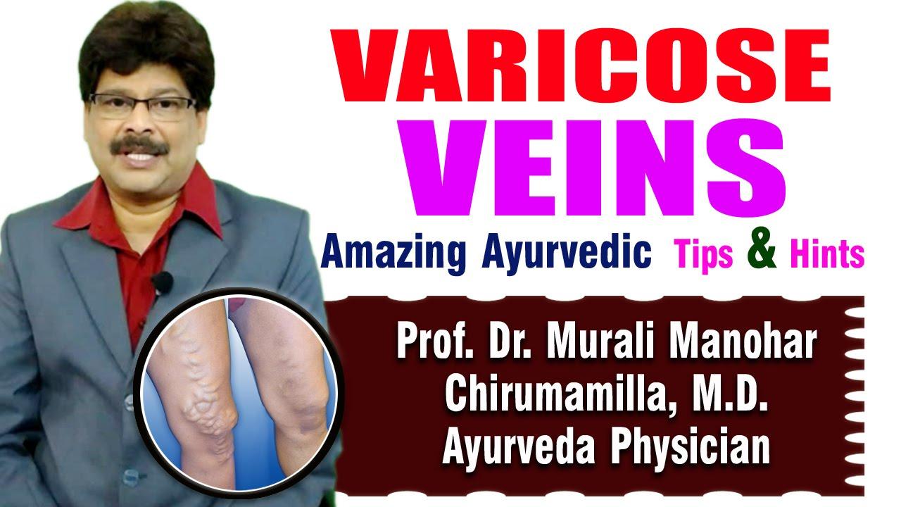 Watch Ayurveda in Hindi, Ayurvedic Treatment and Medicines in Hindi video