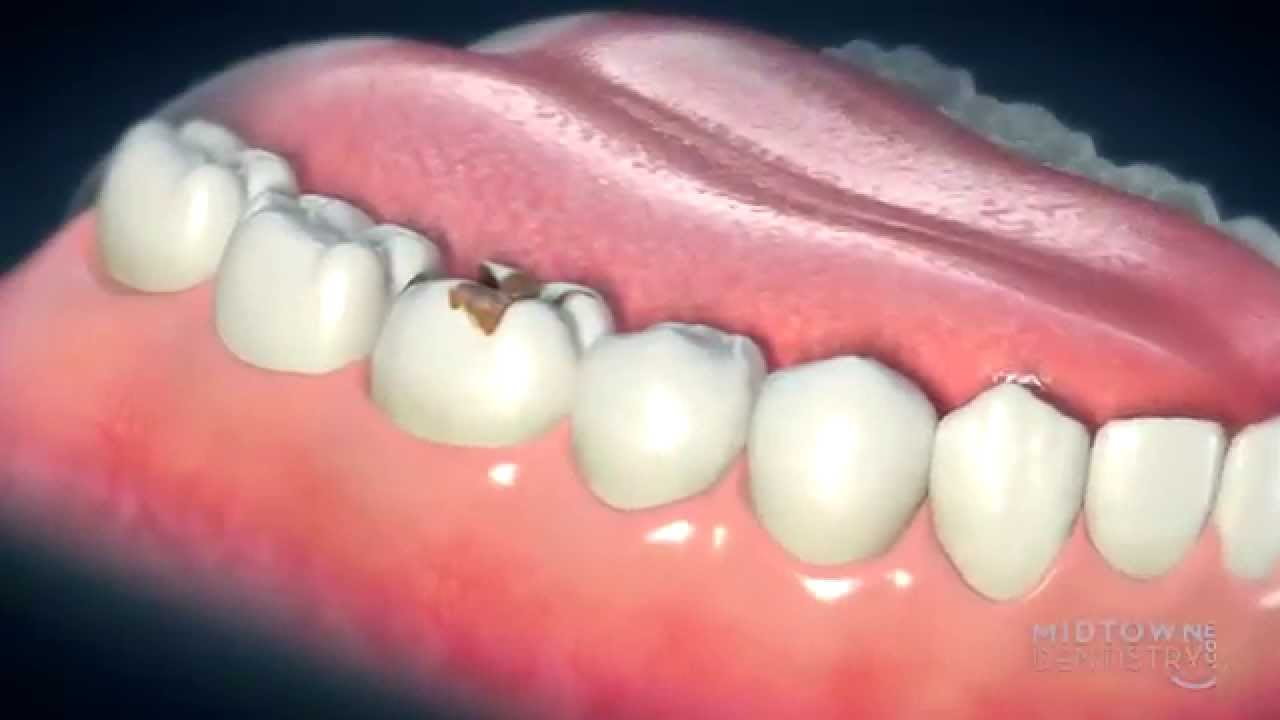 Dental Crowns - Everything You Need to Know About Dental Crowns