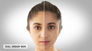 How to get clear and Healthy skin-BeBeautiful