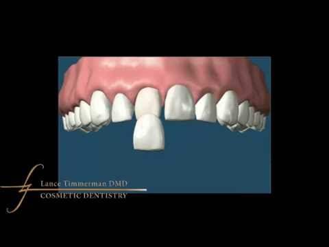 How do I remove brown Spots on Teeth?