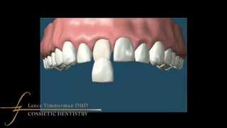 How Do Remove Brown Spots Teeth