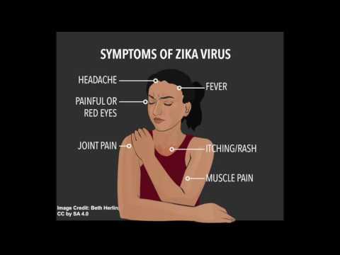 Zika Virus: Symptoms and Diagnosis