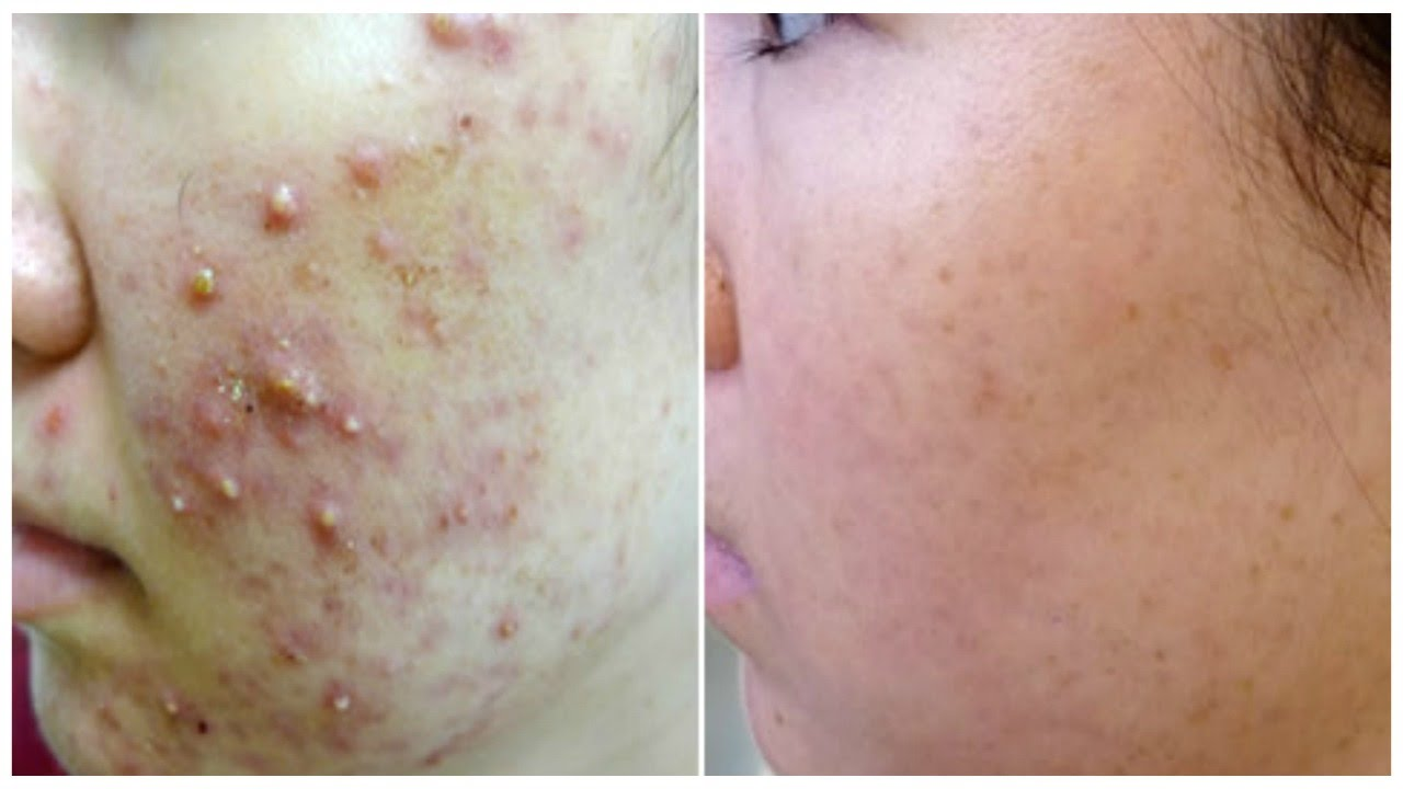 Overnight Removal Of Acne Amp Acne Scars I Best Indian Home