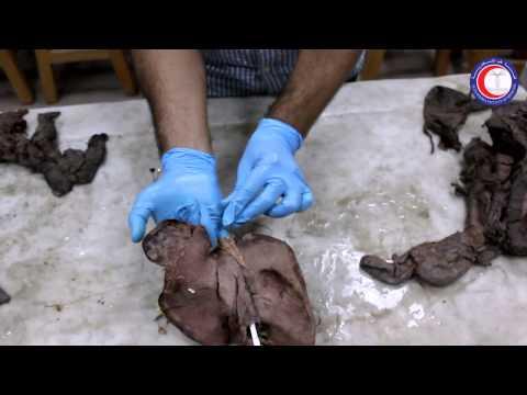 Practical Anatomy - GIT - Alexandria Faculty of Medicine - Dr. Hazem Gamal
