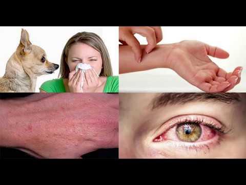 Как вылечить аллергию на собак навсегда