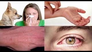 Аллергия на собак. Типичные заблуждения. Что делать?
