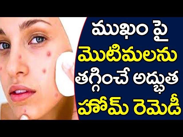 Clear pimples and dark sports | ముఖం పై మొటిమలను తగ్గించే అద్భుత హోమ్ రెమెడీ