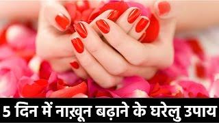 ५ दिन में नाख़ून बढ़ाने के घरेलु उपाय | Beauty Tips | Nails Care