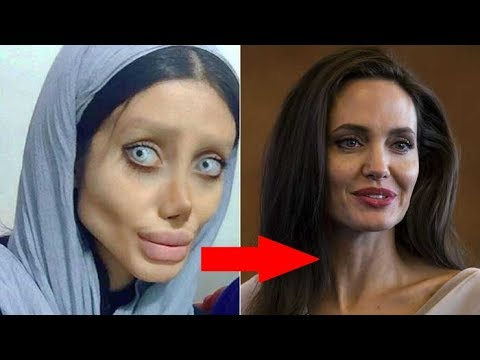 Sahar Tabar Antes Y Despues >> Видео Sahar Tabar