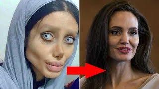 Sahar Tabar  -  Antes y después de la cirugía plástica