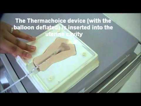 Demonstration on Endometrial ablation with Gynecare Thermachoice using a uterine model