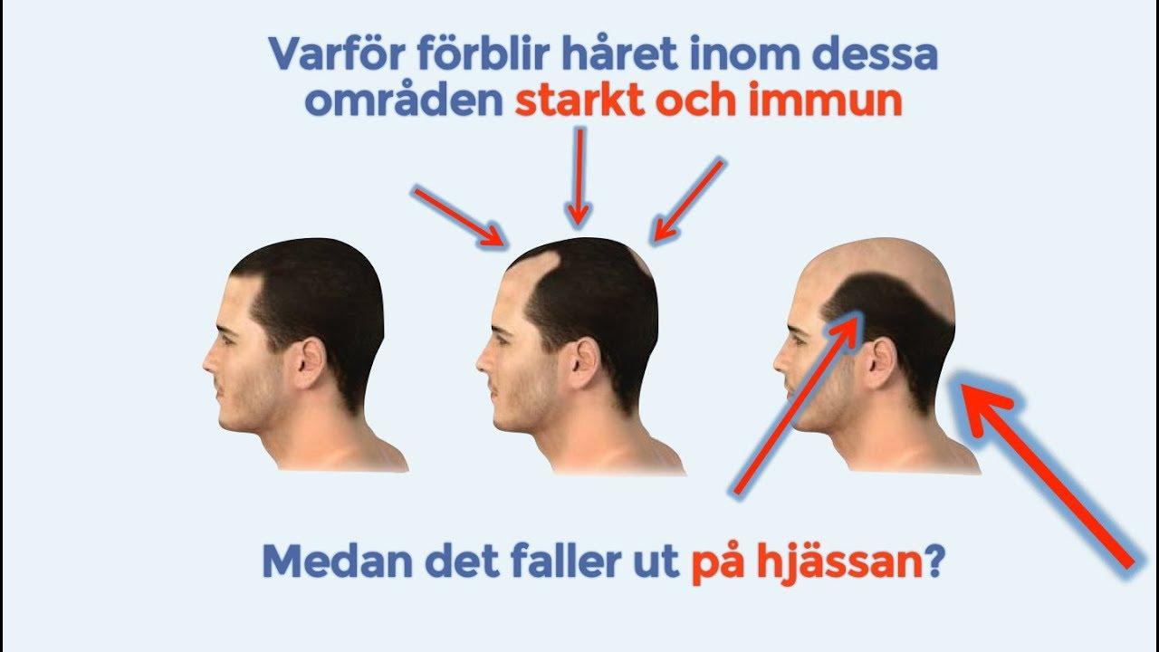 håravfall män behandling