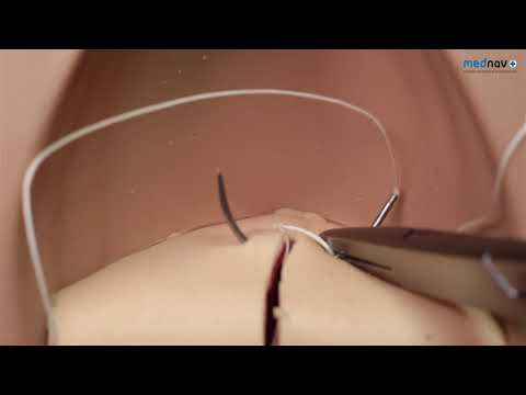 How to repair 1st & 2nd degree Perineal tear - YouTube