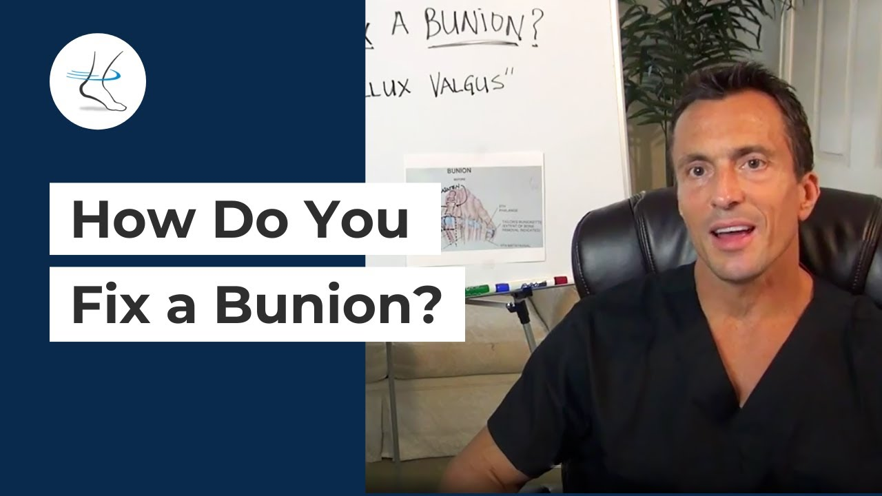medium resolution of how do you fix a bunion ask dr moore houston foot and ankle surgeon