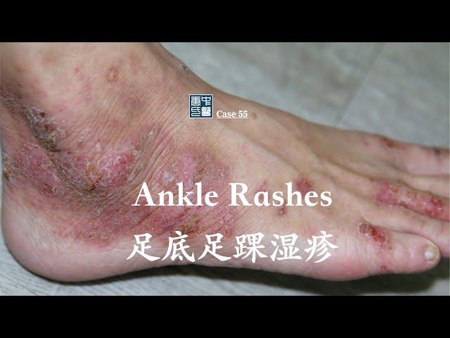 ankle rash, 足底足踝湿疹,