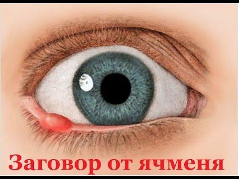 Ячмень на глазу: лечение в домашних условиях быстро