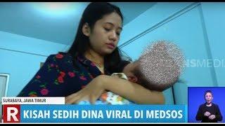 KISAH Bayi Pengidap Hidrosefalus di Kabupaten Tegal.
