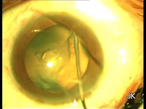 Phacoemulsification in Posterior Subcapsular Cataract