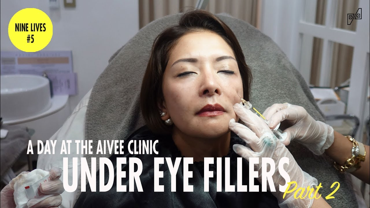 MY FIRST TIME TO TRY UNDER EYE FILLERS   CAT ARAMBULO-ANTONIO