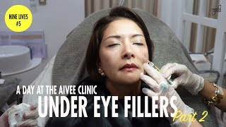 MY FIRST TIME TO TRY UNDER EYE FILLERS | CAT ARAMBULO-ANTONIO