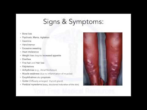 All about Sia`s Disease - All about this mistery Graves Disease explained