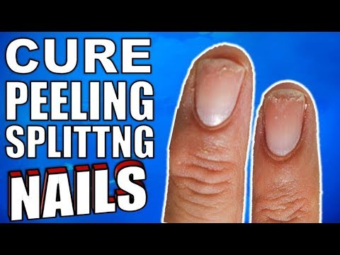 Why Are Your Nails Peeling & Splitting ?   How to Stop It For Good ...