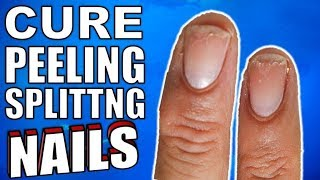 Why Are Your Nails Peeling & Splitting ? | How to Stop It For Good