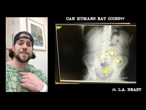 What Happens When You Eat 21 Metal Coins | Human Science Experiment (Feat. L.A. BEAST)