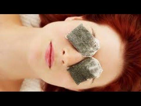 Ojos los casero hinchados a alergias remedio