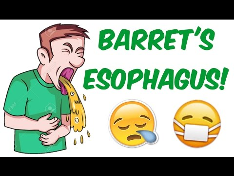 Barret's Esophagus! - Cell METAPLASIA and risk of MALIGNANCY!