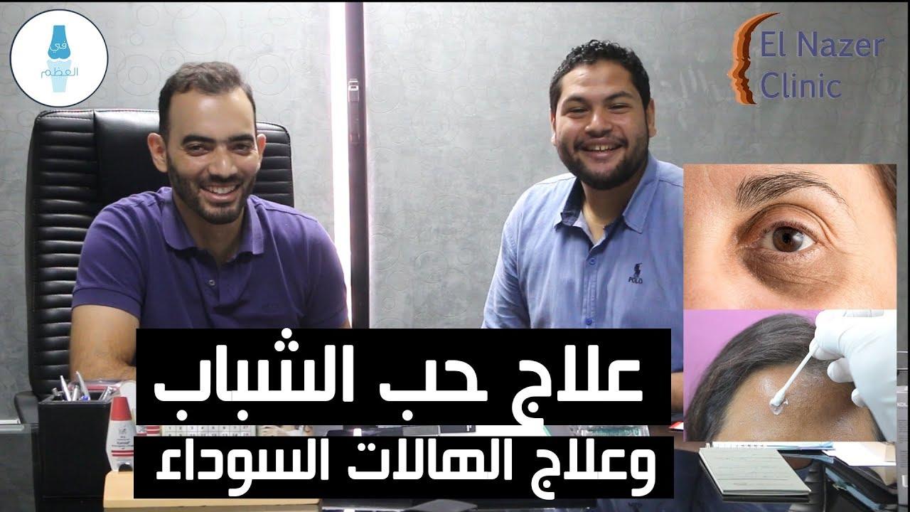 علاج حب الشباب والهالات السوداء -  د .محمد الناظر