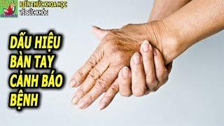 7 Dấu hiệu trên cánh tay báo hiệu những căn bệnh tiềm ẩn