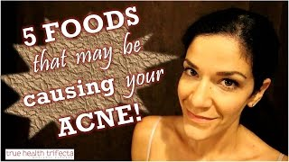 ACNE CAUSING FOODS: 5 Foods that may be giving you pimples! - Clear Skin / Acne / Vegan / Skin Tips