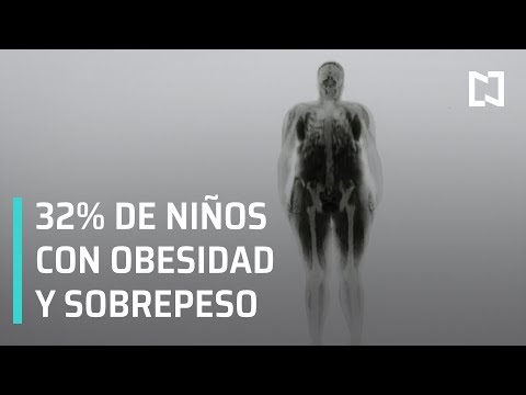 Obesidad infantil en México - En Punto con Denise Maerker