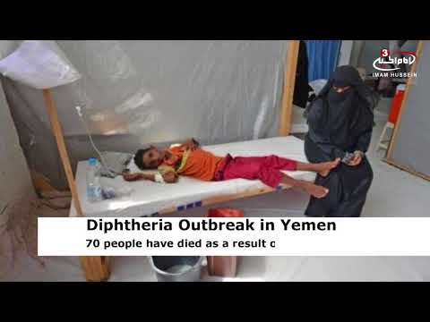 Over 1,300 Yemenis infected with diphtheria amid Saudi war: WHO