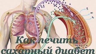 Как лечить сахарный диабет, препараты при сахарном диабете, Глюкосил