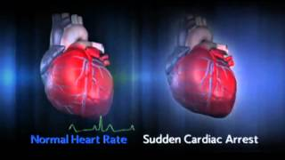 Sudden Cardiac Arrest (SCA)