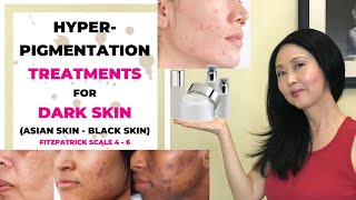 Hyperpigmentation Treatments for Dark Skin