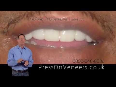 Press On Veneers  United Kingdom