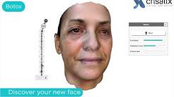 Crisalix 3D Plastic Surgery Visualizer