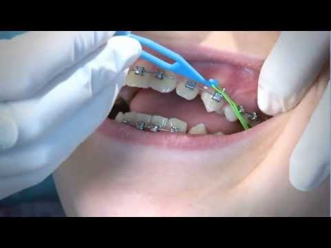 How to Wear Orthodontic Elastic Bands