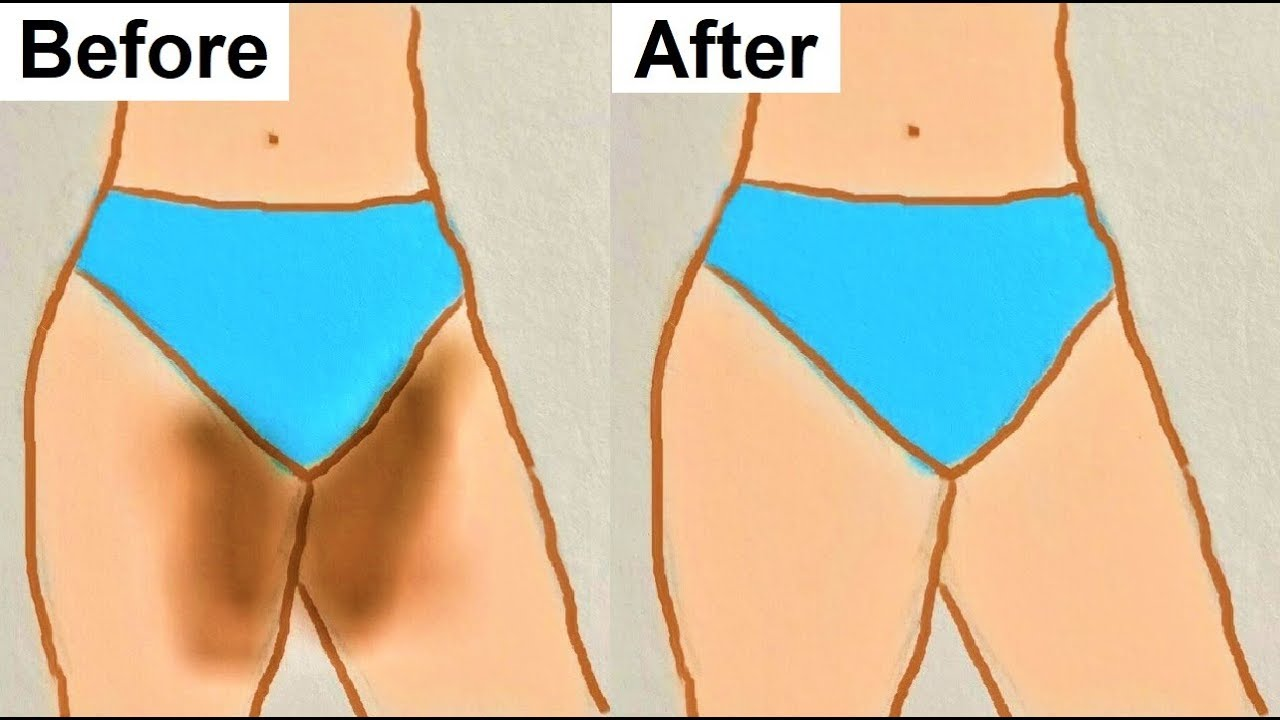 how to clear dark areas between legs