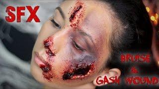 SFX: Bruise & Gash Wound